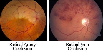 Retinal vascular occlusion