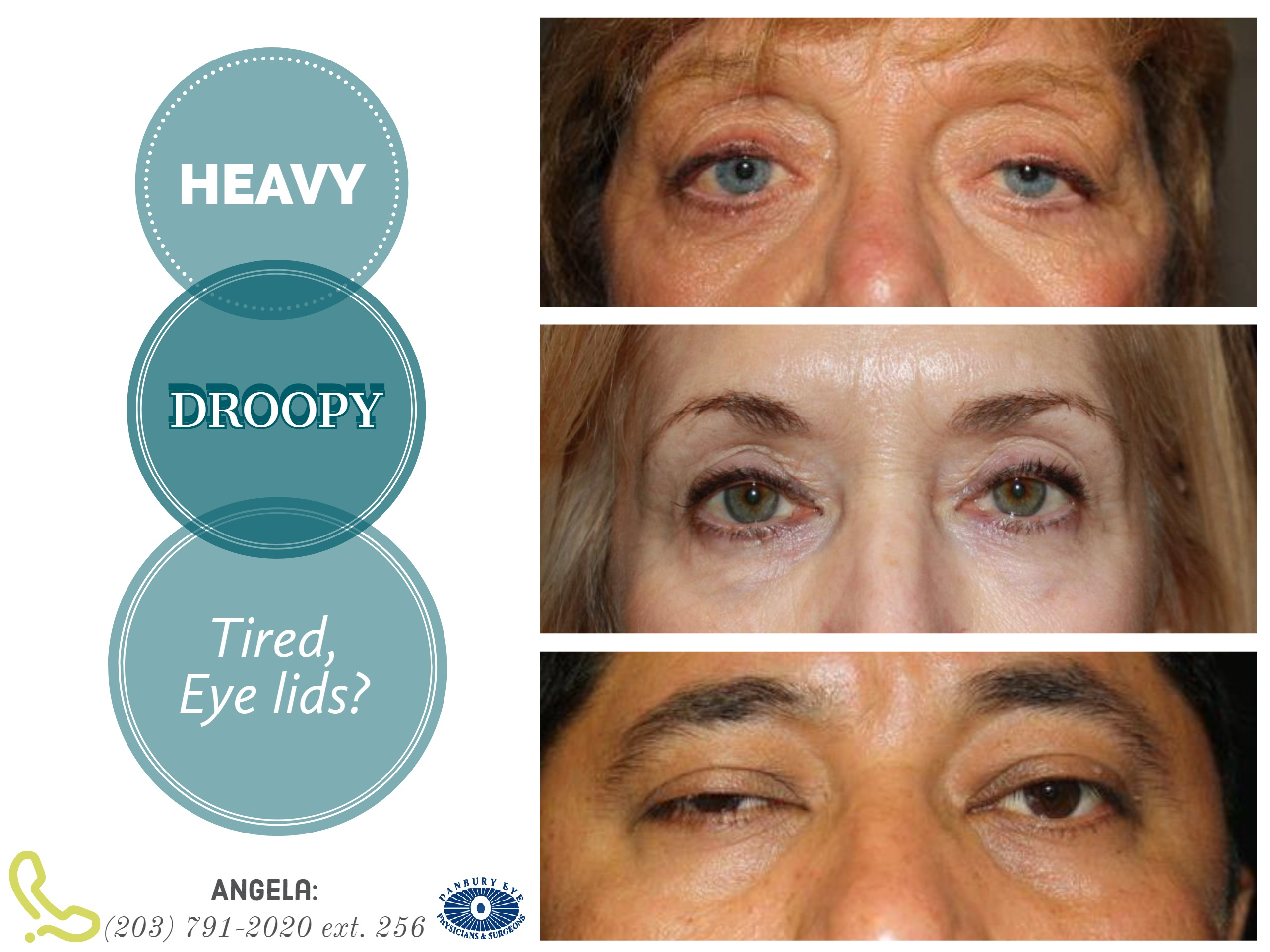 Eyelid Surgery Examples